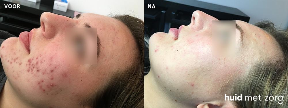 Acne behandeling resultaat peeling en laser