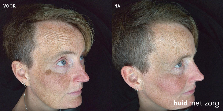Behandeling pigmentvlekken Resultaat pigment verwijderen laser